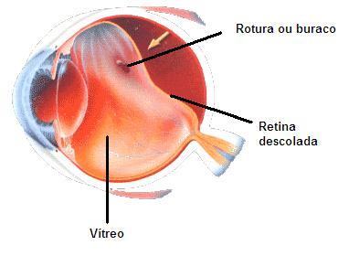 Deslocamento da retina